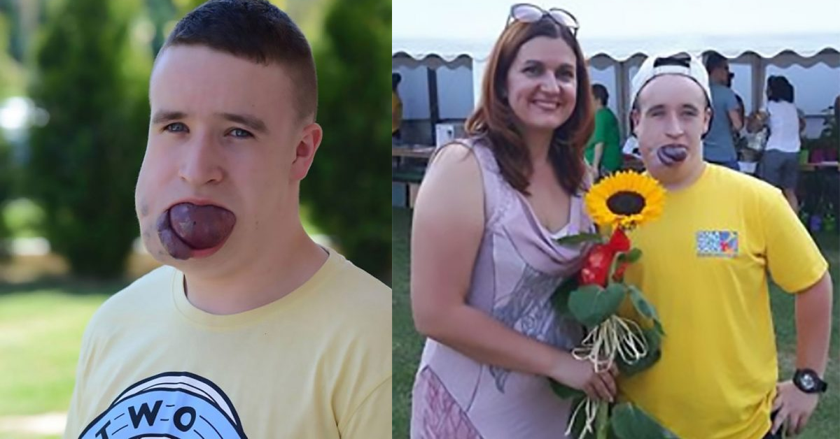 Teenager With A Tongue The Size Of A TENNIS BALL Is Raising Money To Save His Life