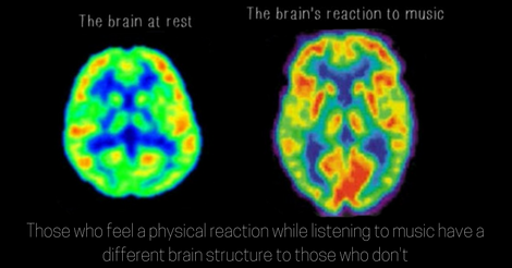 If Music Gives You Goosebumps, You May Have A Very Special Brain
